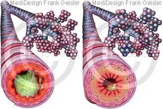 Erkrankung Bronchien der Lunge, Bronchitis und Asthma bronchiale COPD