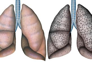 Lungen, gesunde Lungen und Lungevon Raucher Raucherlunge COPD