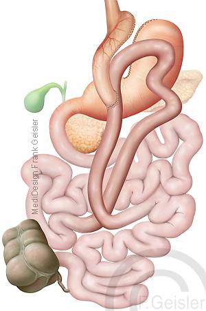Magen Bypass OP Operation, Mini Gastric Bypass MGB bei Adipositas