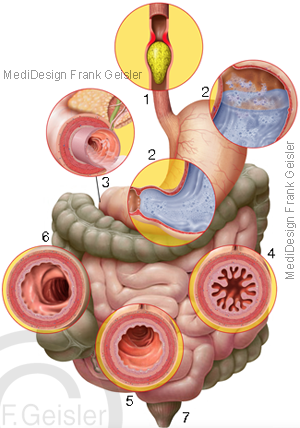 Organe im Magen-Darm-Trakt, Gastrointestinaltrakt im Verdauungstrakt des Menschen