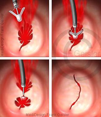 Erkrankung Mitralinsuffizienz Herz, Mitralklappe mit MitraClip