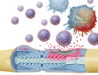 Multiple Sklerose MS, Nervenzelle Neuron, Zerstörung Markscheide Myelinscheide durch Immunzellen