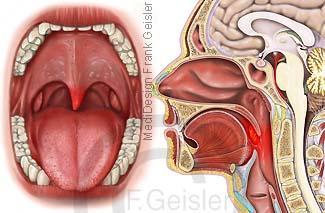 Mund Mundhöhle Nase Nasenhöhle Rachen, Gaumen mit Zäpfchen