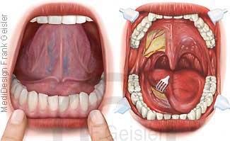 Mund mit Mundhöhle, Zunge und Gebiss Zähne