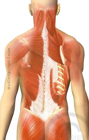 Anatomie oberflächliche und tiefe Muskeln Muskulatur am Rücken