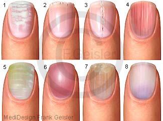 Nägel Fingernägel mit Nagelveränderungen Nagelkrankheiten