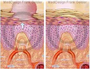 Narbe Narbenbildung auf Wunde Wundheilung der Haut