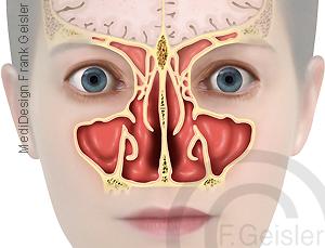 Anatomie Nasenhöhle Cavitas nasi mit Nebenhöhlen Nasennebenhöhlen Sinus paranasales der Nase