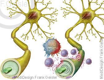 Nervenzelle Neuron, Abbau Myelinscheiden Markscheide bei Multiple Sklerose MS durch Immunzellen