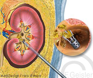 Niere mit Nierenbecken, Zertrümmerung Harnstein Harnsteinentfernung