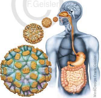 Infektion durch Viren, Norovirus Norwalk-Virus im Verdauungssystem Verdauungstrakt Magen-Darm-Trakt