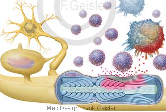 Oligodendrozyt auf Nervenzelle Neuron mit Axon Myelin, Veränderungen durch Multiple Sklerose MS