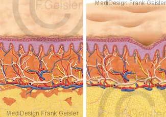 Dellen der Orangenhaut Cellulite, Fettgewebe Bindegewebe in Haut
