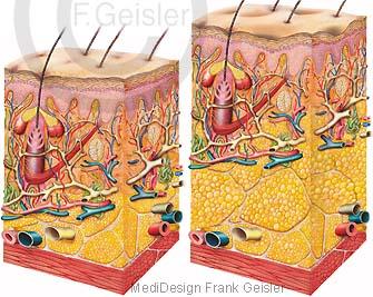 Anatomie normale Haut und Hautveränderungen bei Orangenhaut Cellulite mit große Fettzellen im Fettgewebe