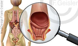 Innere Organe von dorsal, Darm Enddarm mit After