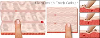 Massage Massagetechnik Palpation Triggerpunkt und Muskel