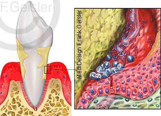 Zahnerkrankheit Erkrankung Zähne Parodontitis Parodontose Zahntasche