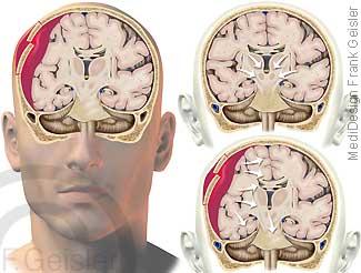 Kopf mit Schädelfraktur, Schädel-Hirn-Trauma durch Fraktur Schädel