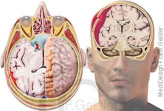 Verletzung Kopf, Gehirn Hirnblutung bei Schädel-Hirn-Trauma