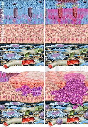 Schleimhaut Schleimhautepithel, Erkrankung Bronchitis Krebs Lunge Lungenkrebs