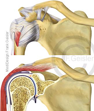 Schulter Schultergelenk mit Arm Oberarm