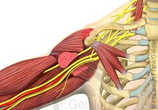 Anatomie Schultergelenk der Schulter mit Muskeln und Nerven Plexus brachialis