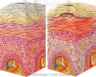 Schuppenflechte Psoriasis und Neurodermitis atopische Dermatitis der Haut