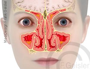 Sinusitis Nasenhöhlen Entzündung Schleimhaut Nasennebenhöhlen Siebbein