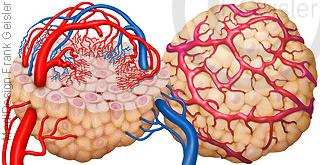 Histologie Tumorzellen Tumor, Wachstum durch Angiogenese Krebszellen Krebs