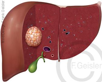 Tumor der Leber Hepar, Krebs Leberkrebs Leberkarzinom Leberzellkarzinom