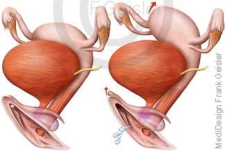 Vulva und Gebärmutter Uterus, Sexualität Orgasmus der Frau