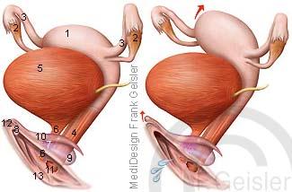 Geschlechtsorgane der Frau, Vulva mit Klitoris, Vagina und Uterus mit Ovar