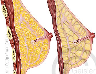 Anatomie weibliche Brust, Gewebe Brustdrüse Mamma