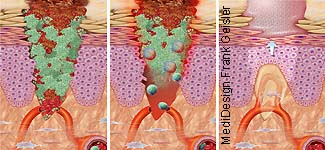 Verletzung und Wunde Wundheilung der Haut
