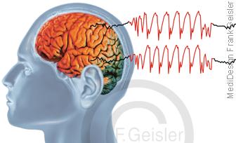ZNS Gehirn mit EEG-Kurve eleptischer Anfall, Epilepsie generalisiert
