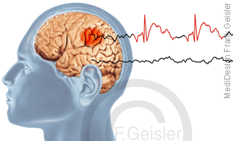 ZNS Gehirn mit EEG-Kurve eleptischer Anfall, Epilepsie fokal