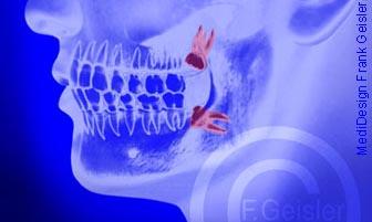 Gebiss mit Zähne Weisheitszähne im Kiefer