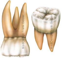 Zahn Backenzahn Backenzähne, oberer und unterer Molar