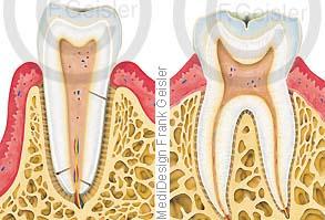 Anatomie Zahn Zähne, Schneidezahn und Backenzahn mit Zahnwurzel