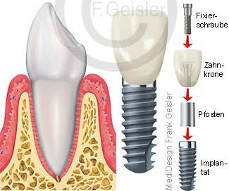 Zahn mit Zahnimplantat, Implantation Implantat in Kiefer Gebiss des Menschen