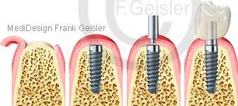 Zahnimplantation, Zahnersatz Zahnimplantat Zähne