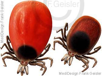 Zecken Zecken Holzbock Krankheitserreger der Erkrankung Borreliose die Frühsommer Meningoenzephalitis FSME
