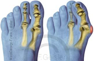 Fehlstellung Fuß, Fußfehlstellung der Zehen Fußzehen mit Hallux valgus