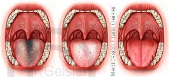 Diagnostik Diagnose Zunge, TCM-Zungendiagnose bei Krankheiten Erkrankung Organe