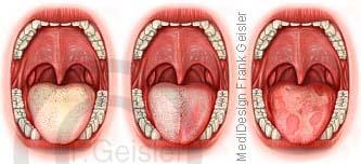 Diagnostik der Zunge, TCM-Zungendiagnose bei Krankheiten Erkrankungen der Organe