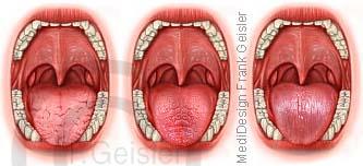 Diagnostik der Zunge mit TCM-Zungendiagnostik, Diagnose erkrankter Organe durch Zungenbelag