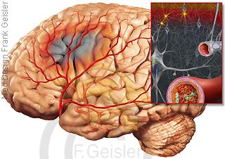 Apoplexie Gehirn, Ischaemischer Schlaganfall der Hirnnerven