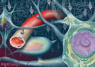 Migräne Kopfschmerzen, entzündete Gefäße mit Nervengewebe Nervenzellen Neuron