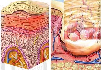 Haut, Epidermis mit Neurodermitis, Wundversorgung Verletzung Wunde