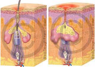 Haut Verhornung und Entzündung Hautentzündung